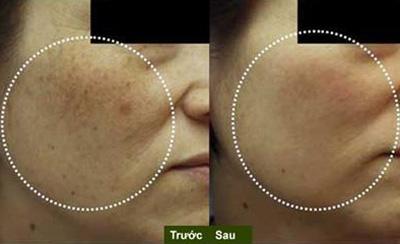 Trước và sau điều trị nám với Solitone 2500 kết hợp Nubrite cream