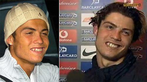 Khi xưa, trông C. Ronaldo thật 'thảm hại' khi nở nụ cười.