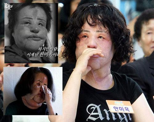 Han Mi Ok sau nhiều lần