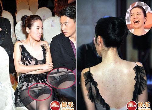 Không chỉ vậy, với trang phục này, Diệp Tuyền để lộ cả mảng lưng trần lấm tấm mụn, gây mất cảm tình cho nhiều người.