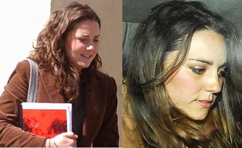 So sánh hai bức ảnh có thể thấy rõ rằng hiện tại (ảnh phải), sống mũi của công nương cao hơn nhiều so với trước đây (ảnh trái).