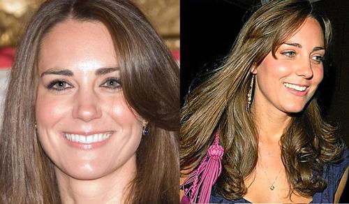 So với trước đây (ảnh phải), hàm răng của Kate đã trắng hơn nhiều (ảnh trái)