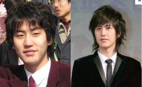Kyuhyun của Super Junior trước và sau khi phẫu thuật mí mắt