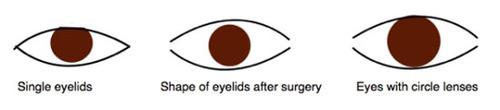 Từ trái sang: Mắt một mí tự nhiên, tròng mắt thay đổi sau phẫu thuật nâng mí và tròng mắt thay đổi nếu bạn sử dụng kính áp tròng.