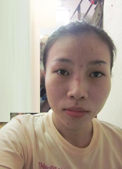 Trước khi trang điểm, khuôn mặt có mụn trứng cá và các đốm da sẫm màu.