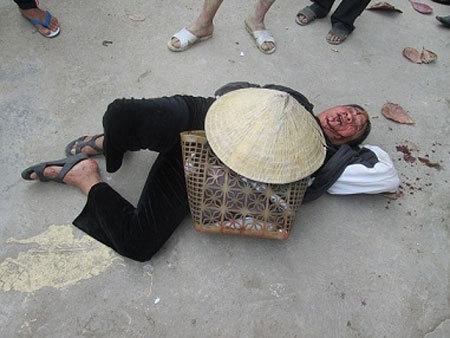 Bà Bình bị đánh, ngã sõng soài giữa đường. Ảnh: Lê Giáp