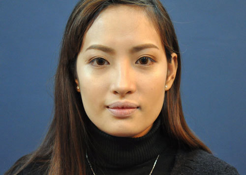 Tạo khối ở các vùng cằm, hai bên má và trán sẽ giúp gương mặt đỡ dài hơn.