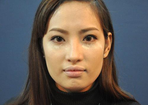 Sau khi tạo khối và lớp nền, gương mặt cô dâu Thư đã bớt dài hơn.