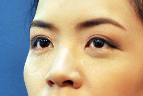 Đôi mắt cô dâu sau khi đã được cân chỉnh cho đồng đều.
