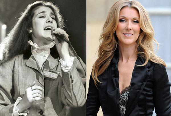 Celine Dion có hàm răng khấp khểnh trước khi cô nổi tiếng.