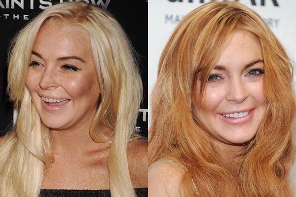 Lindsay Lohan từng bị vàng xỉn răng vì hút thuốc và tiệc tùng nhiều. Cô đã phải tới gặp nha sĩ để có hàm răng trắng sáng.