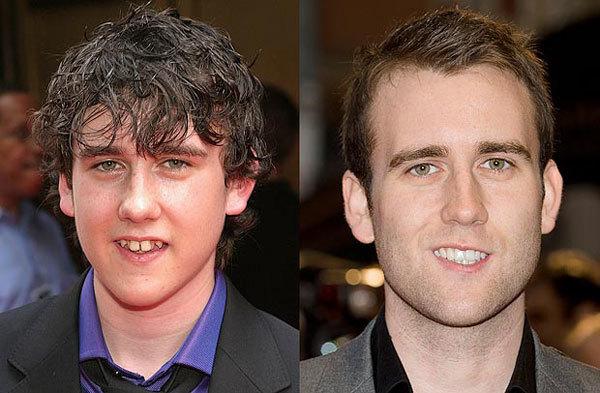 """Nam diễn viên """"Harry Potter"""" Matthew Lewis trước và sau khi tới nha sĩ."""