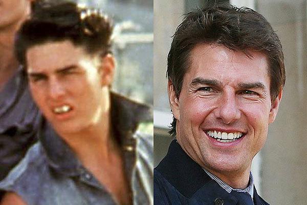 """Tom Cruise lộ hàm răng mọc lệch khi anh đóng phim """"The Outsiders"""" năm 21 tuổi."""