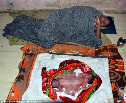 Chị Shalu nằm nghỉ tại nhà sau khi sinh con. Ảnh: Rex Features/ Indian Photo Agency