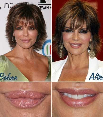 bad-surgery-lisarinna-359352-1374315573_