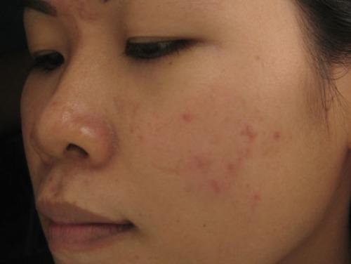 Sẹo thâm xuất hiện làm da mặt rất xấu xí.