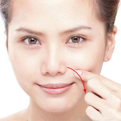 Những nếp nhăn rãnh mũi, má và nếp nhăn nhỏ quang miệng gây ảnh hưởng nhiều trong giao tiếp, dễ tạo ra một hình ảnh già cỗi.