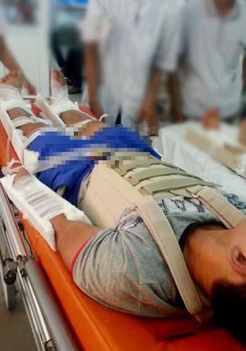 Vũ Hữu Huấn khi được đưa về Bệnh viện Việt Đức (Hà Nội) cấp cứu.