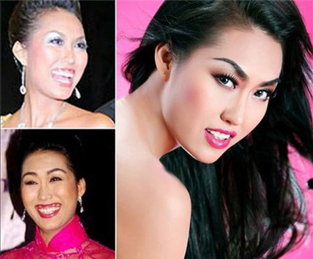 Nụ cười trước đây của Thanh Vân hở lợi kém duyên.