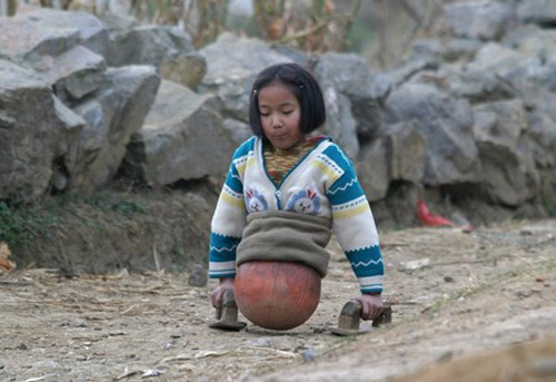Qian Hongyan is a girl from Luliang county in Yunnan, China, whose legs were amputated after a car accident when she was four.
