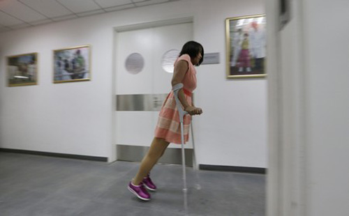 he centre officials said her new legs are comparable to the best in the world and will help her live a normal life.