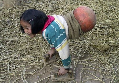She learned to walk on her hands, using a basketball cut in half to steady herself. The locals began calling her basketball girl.