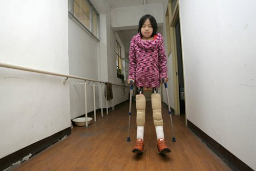 As Qian was born to an impoverished family, she had to accept that when her medical treatment ended in 2007, she would not be able to continue her education with her peers. She was 11-years-old.