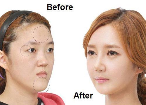 Phẫu thuật cắt mí và những biến chứng