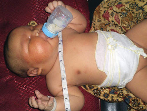 Akbar Risuddin, 19.2 Pounds Akbar, born in October 2009, set the record for heaviest baby born in Indonesia. MSNBC reported that his mother, Jakarta, had gestational diabetes which was likely a cause for his heavy weight.