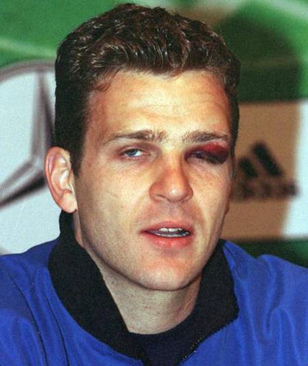 Cựu ngôi sao điển traiOliver Bierhoff với bên mắt sưng đỏ không mở được ra sau pha va chạm với đồng đội Marco Bode tại một trận vòng loại Euro năm 1999.