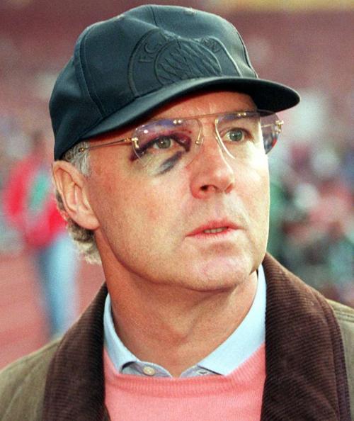 Huyền thoại bóng đá Đức Franz Beckenbauer tím bầm một bên mắt vì bị bóng bay trúng mặt trong một buổi tập khi ông còn làm HLV Bayern Munich năm 1996.