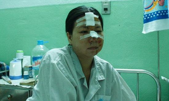 Chị Cúc biến dạng gương mặt vì bị đánh ghen& nhầm.