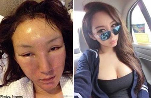 Chen Yi Man trước và sau khi phẫu thuật thẩm mỹ. Ảnh: Lollipop