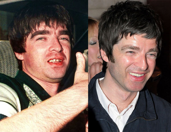 7-Noel-Gallagher-9646-1388389790.jpg