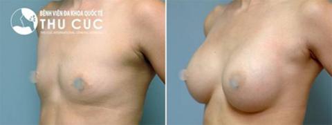 Ngực đẹp tự nhiên