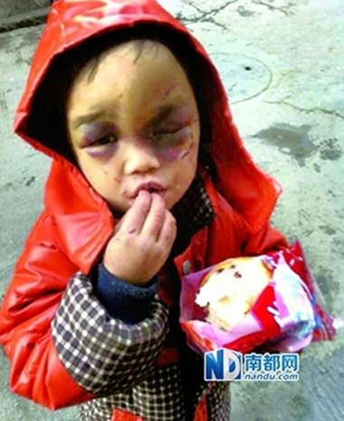 child-abused-4512-1390638017.jpg