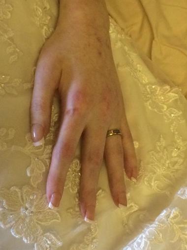 Hayley Ann Thomas, 26 tuổi, ở thị trấn Caernarfon, phía tây nước Anh dự định sẽ cưới David Clarke vào tháng 5. Cô đã chọn địa điểm, đặt trước khách sạn