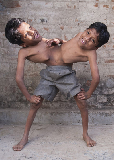 Conjoined-twins-Shivnath-and-S-2849-8969