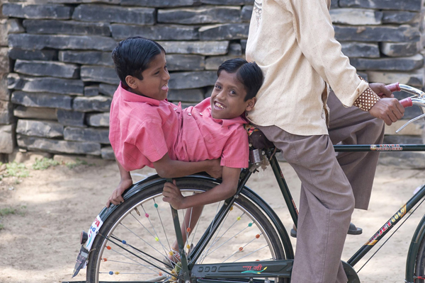 Conjoined-twins-Shivnath-and-S-6461-3319