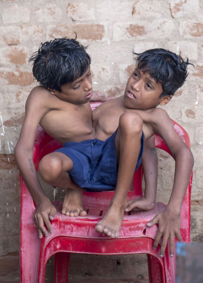 Conjoined-twins-Shivnath-and-S-7168-5261