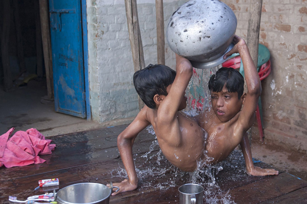 Conjoined-twins-Shivnath-and-S-7589-7334