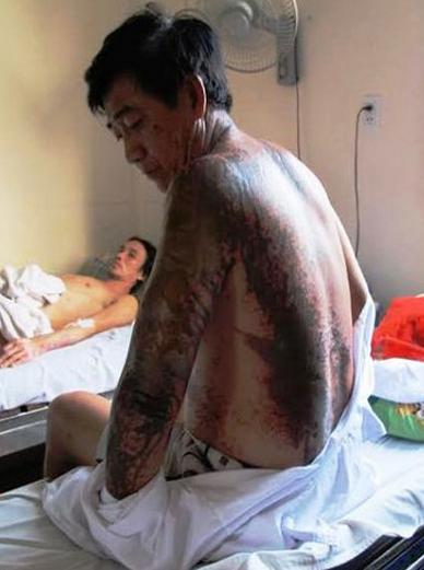 Anh Hòa bị bỏng 30% cơ thể do tạt nhầm axít.