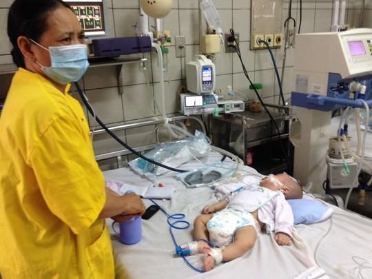 Chị bé vừa mất được hơn một tháng thì bé cũng đang trong tình trạng nguy kịch.