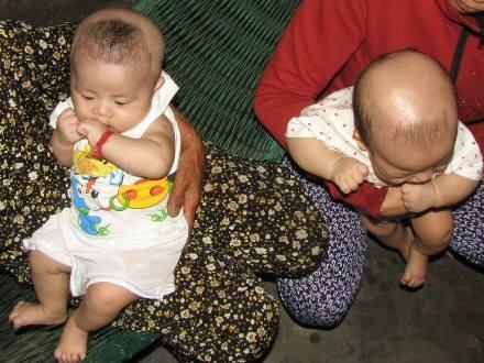 Đầu hai cháu bé bị cạo trọc lóc.
