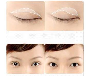 Ba phương pháp cải thiện mí mắt dùng nhiều nhất hiện nay