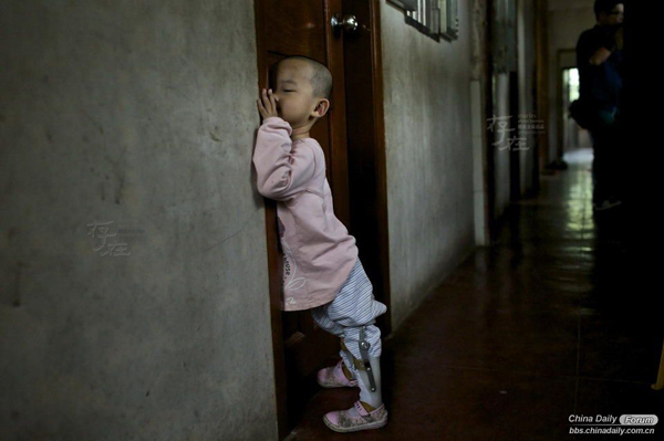 The 5-year-old orphan Ru Tong has a disease called Congenital pes varus. After treatment, he could walk by leaning against the wall, but it is still hard for him to do so. Orphans' names start with the character