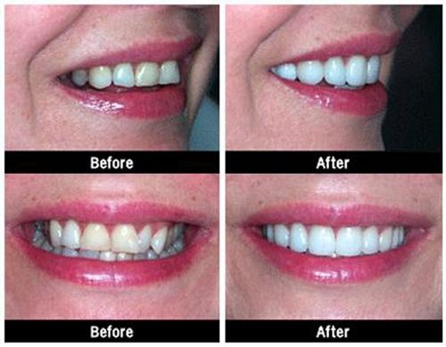 Tẩy trắng răng tại phòng khám nha khoa diễn ra tại phòng khám trong khoảng thời gian từ 40 đến 60 phút.