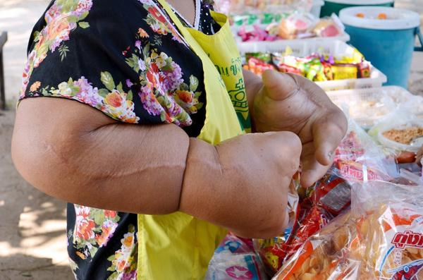 Người phụ nữ, hiện 59 tuổi, cho biết việc vận động đôi tay gây cho bà cảm giác đau đớn, thậm chí những công việc đơn giản như giặt giũ và chải tóc cũng không phải dễ dàng đối với bà.