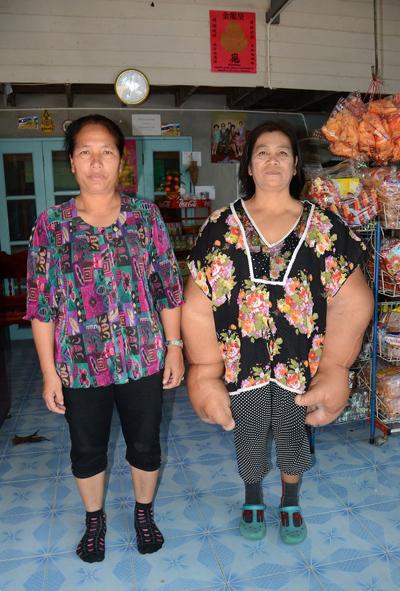 Xấu hổ vì căn bệnh lạ, bà Samaksamam mất 20 năm đầu đời sống tách biệt với mọi người và không dám đến trường học. Do áp lực kiếm tiền để nuôi sống cha mẹ già cả, bà mới dám bước ra ngoài để thay cha mẹ quản lý cửa hàng tạp phẩm của gia đình.