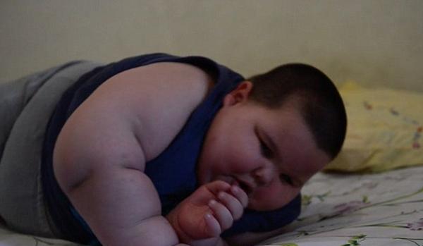Kể từ khi sinh ra đến nay, trung bình mỗi tháng bé Misael, người Brazil, tăng khoảng 2,7 kg. Với thân hình tròn như quả bóng, Misael gặp khó khăn trong việc vận động và đi lại.